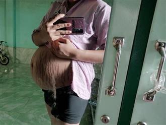 Thai phụ 9x đăng ảnh khoe bầu vượt mặt, cộng đồng mẹ bỉm sữa 'nhìn mà thấy thương xót vô cùng'