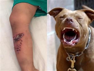 Người cha kể lại lúc cạy miệng chó Pitbull cứu con trai hơn 2 tuổi: 'Tôi sợ chỉ chậm vài giây thôi...'