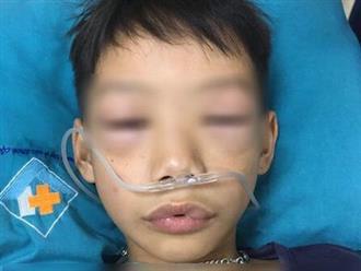 Con trai 10 tuổi sốt ho, người nhà tự ý mua thuốc cho uống gây sốc phản vệ nặng, phù nề môi và mí mắt