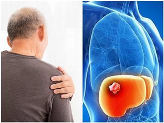 Bị ung thư gan nhưng lại chỉ có triệu chứng đau mỏi vai suốt 1 năm, đứng trước cửa tử, người đàn ông 'sốc' nặng khi bác sĩ 'vạch trần' nguyên nhân gây bệnh