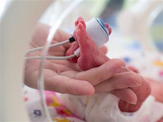 Sốc: Bác sĩ tuyên bố em bé sinh non qua đời và đặt 'thi thể' suốt 8 tiếng trong túi nilong, cha mẹ phát hiện chi tiết bất ngờ và giúp con sống lại ngay sau đó