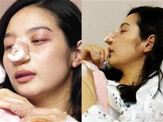 Kết hôn được 13 ngày, nữ diễn viên Hàn Quốc bị chồng chặt ngón tay, đánh đến sảy thai khiến cả đời không được làm mẹ