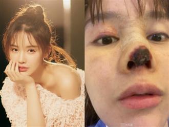 Mỹ nhân Hoa ngữ bị hoại tử mũi, gương mặt biến dạng sau phẫu thuật thẩm mỹ