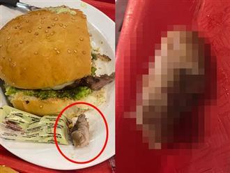Kinh hoàng: Vô tình ăn phải ngón tay người kẹp trong chiếc hamburger
