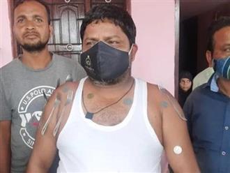 Một người đàn ông Ấn Độ tuyên bố, cơ thể có thể hút được kim loại sau khi tiêm vắc xin COVID-19
