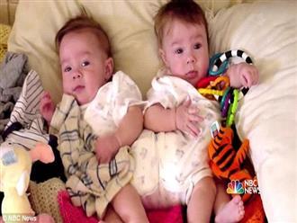 2 con gái sinh đôi dính liền, cha mẹ mất 7 tháng mới quyết định tách rời con, 17 năm sau ai cũng mãn nguyện khi thấy nụ cười của các em