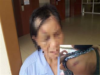 Bà ngoại U70 bị cháu cắt tóc, đánh gãy 5 xương sườn: Vợ chồng con gái chứng kiến nhưng không can ngăn