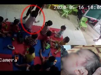 Bắc Giang: Nghi vấn cơ sở mầm non tư thục bạo hành dã man bé gái hơn 2 tuổi khi mới nhập học 3 ngày