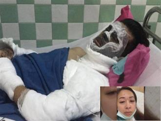 Việt kiều bị tạt axit, cắt gân chân: Bạn gái tiết lộ tình hình sức khỏe của bạn trai sau nhiều ngày điều trị tại Thái Lan