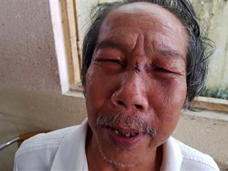 Bảo vệ đánh nhà thơ 68 tuổi ngất xỉu từng đi tù vì buôn bán ma túy