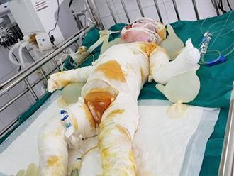 Bé 3 tuổi ngã xuống hố vôi đã qua đời
