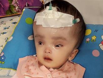 Bé gái 8 tháng tuổi bị não úng thủy đã qua đời