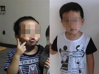 Bé trai 6 tuổi bị mẹ và cha dượng bạo hành đã tử vong trong bệnh viện sau 11 ngày cứu chữa