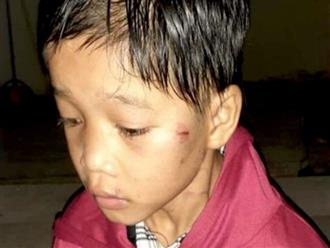 Bé trai 8 tuổi bị mẹ bỏ rơi ở trạm xăng với nhiều vết thương trên mặt kèm lá thư: 'Ngày nào con cũng gây rắc rối, hãy tự lo cho mình nhé'