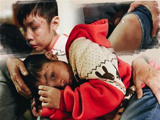 Bé trai bị bố và mẹ kế bạo hành đến rạn sọ não ngơ ngác hỏi mẹ: 'Bố có hối hận không?'