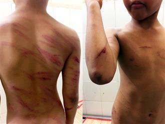 Bé trai bị cha dượng đánh đập hết sức dã man