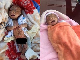 Tây Ninh: Bé trai chưa đầy 1 tháng tuổi, người đầy vảy ngứa như da trăn bị bố mẹ bỏ rơi ngoài đường