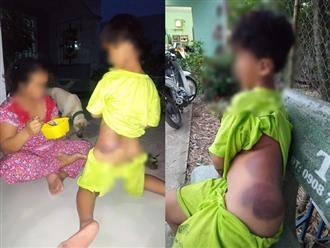 Long An: Bé trai khuyết tật 7 tuổi bị cô giáo đánh bầm tím cả cơ thể