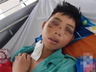 Gặp tai nạn khi đi phụ hồ kiếm tiền giúp đỡ cha mẹ, bé trai 15 tuổi phải bỏ một bên mắt