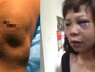 Phẫn nộ: Vợ bị chồng dùng dao cắt tóc và gân chân vì ghen tuông