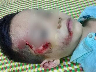 Bị tố thờ ơ với bệnh nhi TNGT, Bệnh viện Hưng Yên nói gì?