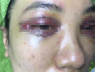 Khách hàng tố bệnh viện gây biến chứng sau khi phẫu thuật thẩm mỹ