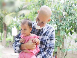 """Bước đường cùng của người cha bị ung thư hốc mũi ôm 2 đứa con thơ dại: """"Con sợ cha chết, không sống cùng tụi con nữa"""""""