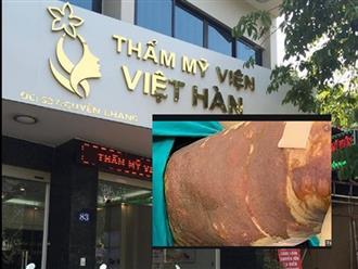 Hà Nội: Rùng mình hình ảnh cô gái trẻ bị hoại tử, bỏng da đùi vì hút mỡ cận Tết