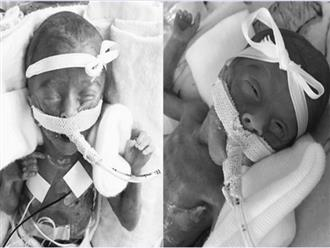 Cặp song sinh chào đời chỉ nặng 0,5kg, dài bằng 1 gang tay của bố từng gây chấn động: Điều kỳ diệu đã không xảy ra