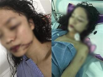 """Chị ruột cô gái bị tấn công phải khâu 60 mũi: """"Mặt em tôi bị rạch như thế thì coi như hết đời người rồi"""""""