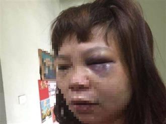 Khởi tố người chồng đưa vợ lên đồi vắng bạo hành dã man