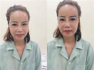 Chịu chơi cấy mỡ tự thân lên mặt, cô dâu 61 tuổi trẻ như 40 khiến chồng 26 vuốt ve mãi không rời