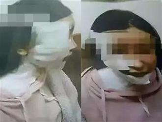 Cô gái bị gã đàn ông hắt cả nồi lẩu vào người hủy hoại gương mặt khiến cộng đồng mạng bức xúc