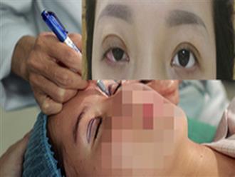 Mê làm đẹp, cô gái cả đời không thể nhắm mắt sau ca phẫu thuật nhấn mí