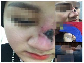 Bắc Giang: Kinh hoàng cô gái thủng sống mũi, lòi sụn vì tin lời 'bác sĩ phẫu thuật thẩm mỹ' 17 tuổi
