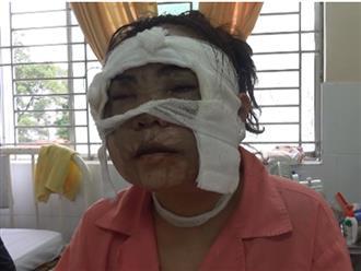 Cô gái trẻ bị tạt axit hủy hoại gương mặt, hỏng hai mắt chỉ vài ngày trước khi lên xe hoa