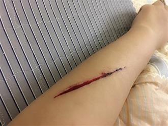 Hà Nội: Xôn xao thông tin cảnh báo của cô gái trẻ bị tên cướp rạch tay, giật túi xách