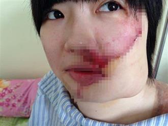 Con gái bị tạt axit trước ngày đám hỏi, cha khóc cầu xin bác sĩ: 'Da tôi nhiều lắm, lấy của tôi được không?'