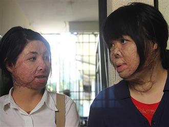 Cuộc sống của hai người vợ sau 2 năm bị chồng tạt xăng đốt: Chỉ mong gương mặt bớt biến dạng để con đừng sợ