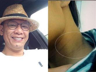 """Đại gia Sài Gòn hiếp dâm nữ sinh du học Mỹ: Chỉ là """"té úp mặt vào vùng mông""""?"""