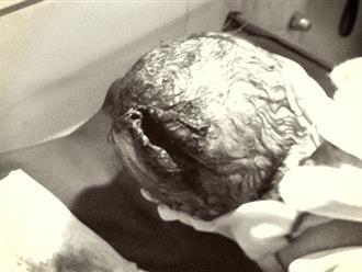 Đỡ đẻ thành công thai nhi bị dao đâm thủng đầu