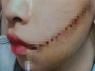 Gã bạn trai nhẫn tâm dùng dao rạch nát mặt bạn gái sau lời thách thức 'thấy đi với người đàn ông khác thì cứ đâm'