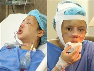 Gương mặt biến dạng vì gặp tai nạn trên đường đi nhận bằng tốt nghiệp, cô gái chịu đau đớn PTTM 3 lần và cái kết khiến nhiều người xúc động