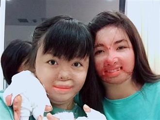 Gương mặt mới của cô gái 9x bị chồng dùng xăng thiêu sống, bệnh viện trả về vì chỉ còn 1% cơ hội sống