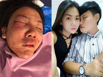 Kinh hoàng gương mặt biến dạng của cô gái xinh đẹp bị người yêu đánh đập, cầu cứu nhưng nhiều thanh niên ngó lơ