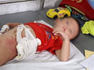 Hòa Bình: Cậu ruột ném cháu trai 4 tuổi vào đống lửa vì giành ăn quả dưa chuột