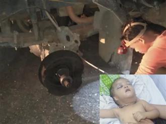 Hoàn cảnh đáng thương của bé gái 2 tuổi đang ngồi trong nhà thì bị bánh xe tải lăn từ con dốc đè trúng, chấn thương sọ não
