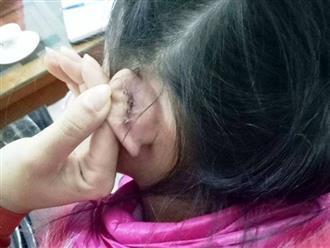 """Học sinh bị rách tai khâu 4 mũi, hiệu trưởng nói """"nghe phong thanh"""""""