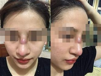 Làm đẹp ở spa, cô gái 19 tuổi bị nhiễm trùng mũi: Bác sĩ tiết lộ lý do khiến ai cũng hoảng hồn