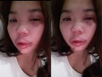Lời kêu cứu của người vợ bị chồng bạo hành, em chồng đánh đập bắt con không cho gặp